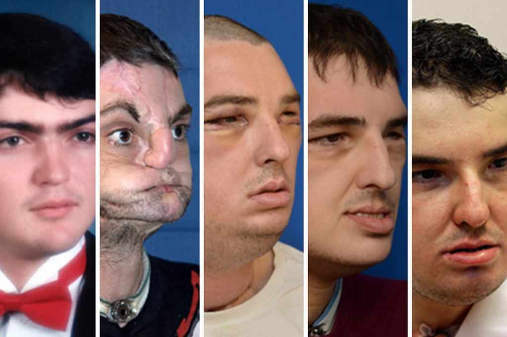 face transplant Experts are wary as some surgeons seek to attempt a face transplant -- a procedure that probably isn't what you think it is.