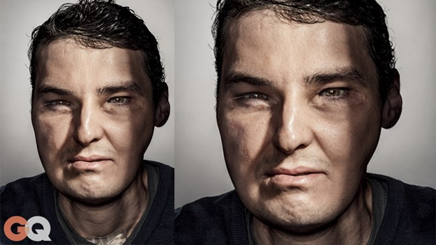 Richard Lee Norris_face-transplant - GQ