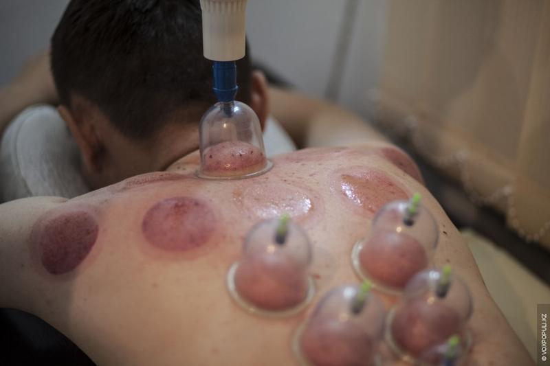 Kazakhstan Alternative medicine - closeup sore
