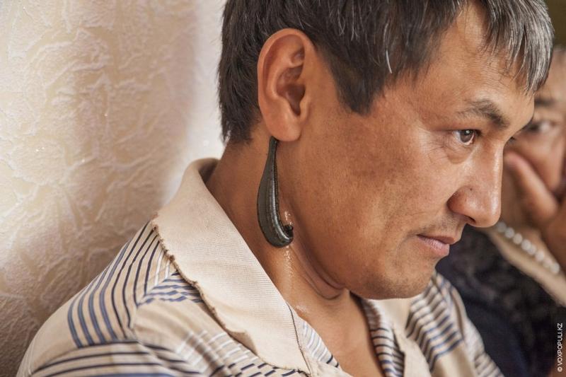 Kazakhstan Alternative medicine - leech on neck 2