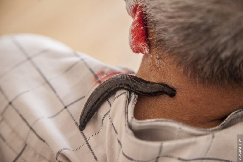 Kazakhstan Alternative medicine - leech on neck