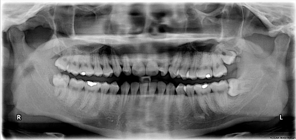 Vestigial organs - wisdom teeth