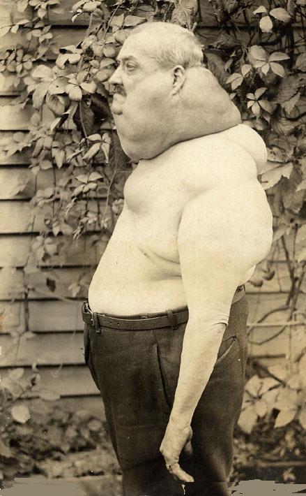 Old Creepy Photos - Deformed Man