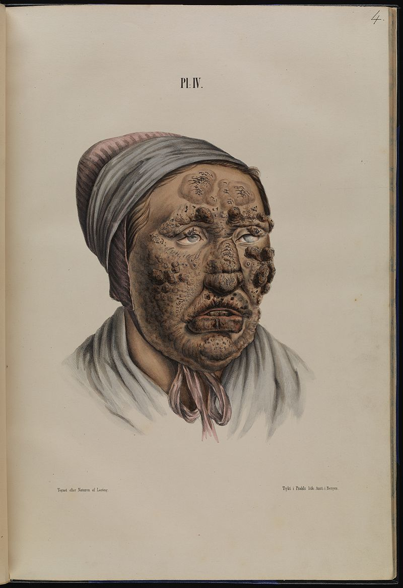 Leprosy in Art - 28 year old woman with leprosy 1800s