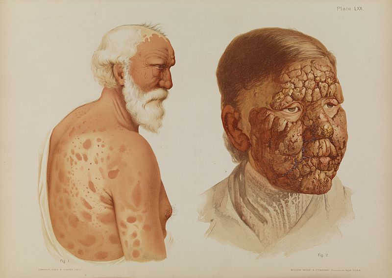 Leprosy in Art - Elderly Couple