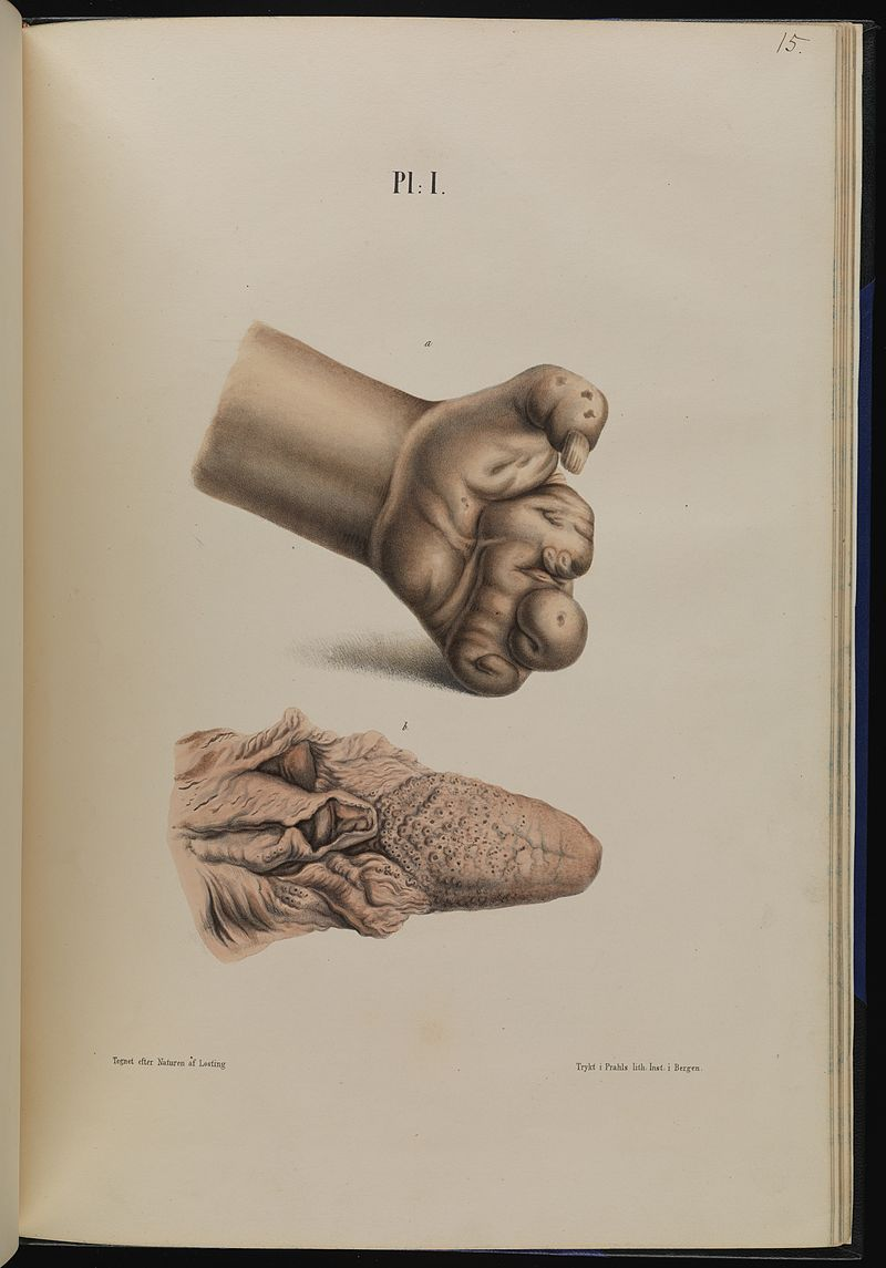 Leprosy in Art - Hand and Tongue 1800s