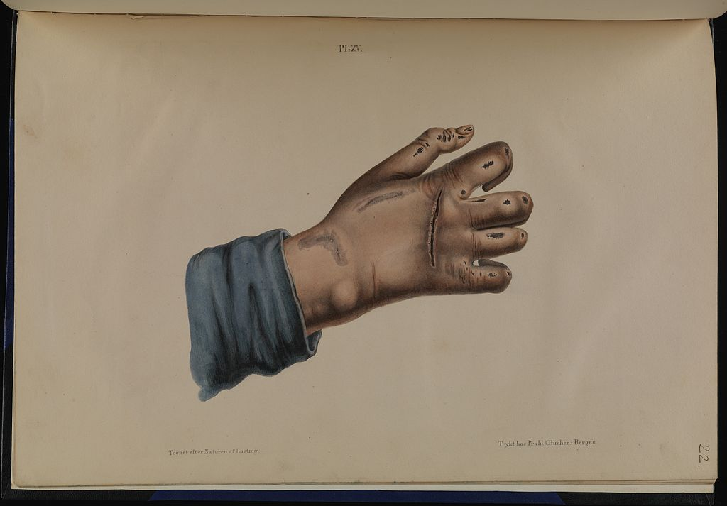 Leprosy in Art - Hand