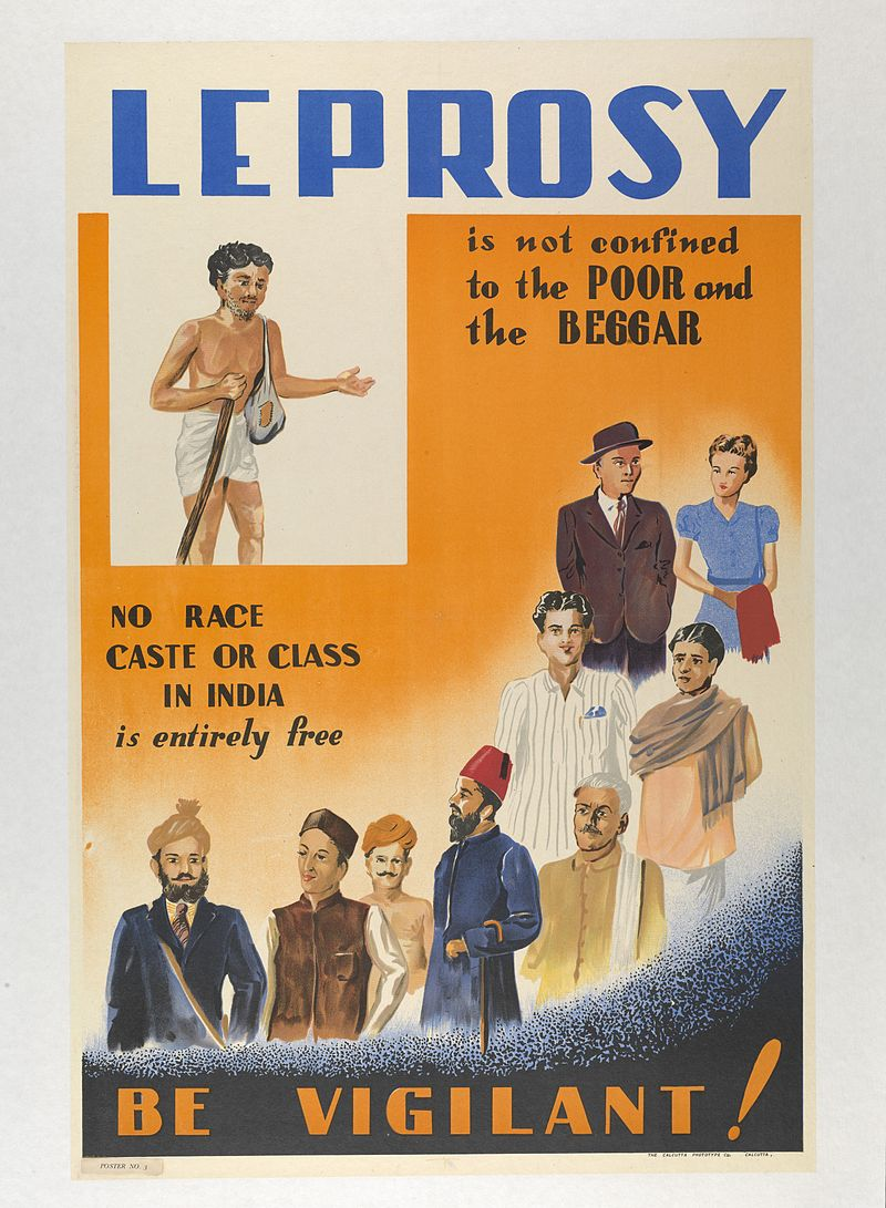 Leprosy in Art - Indian Poster