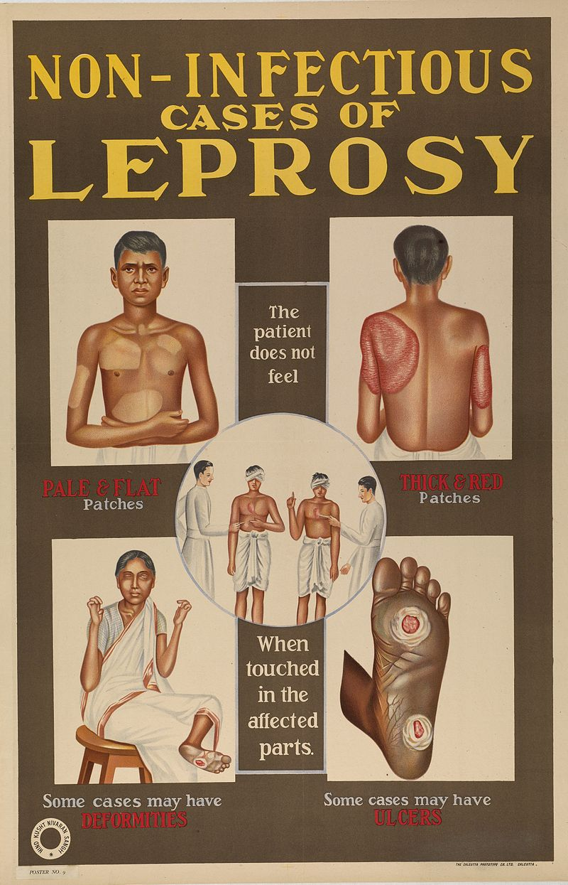 Leprosy in Art - Indian Public Information Poster