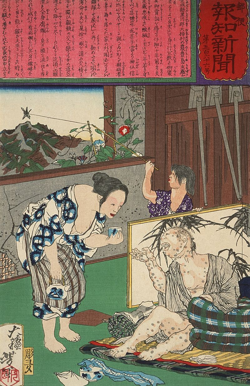 Leprosy in Art - Japan