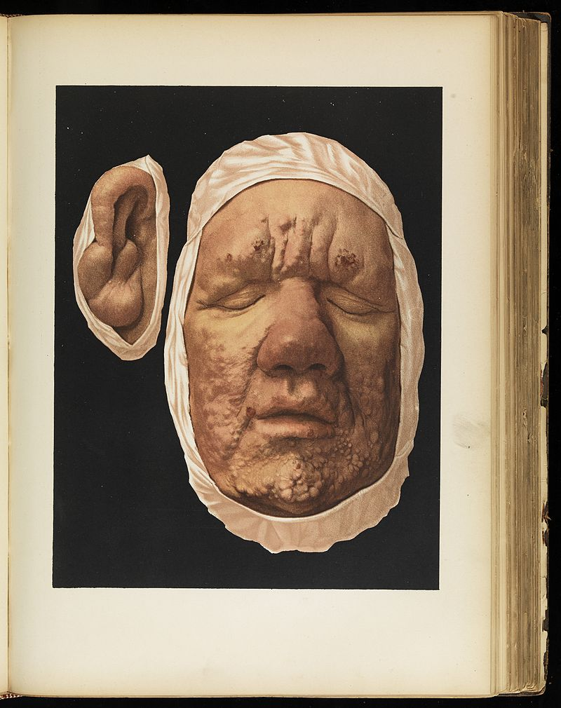 Leprosy in Art - Leper's Face