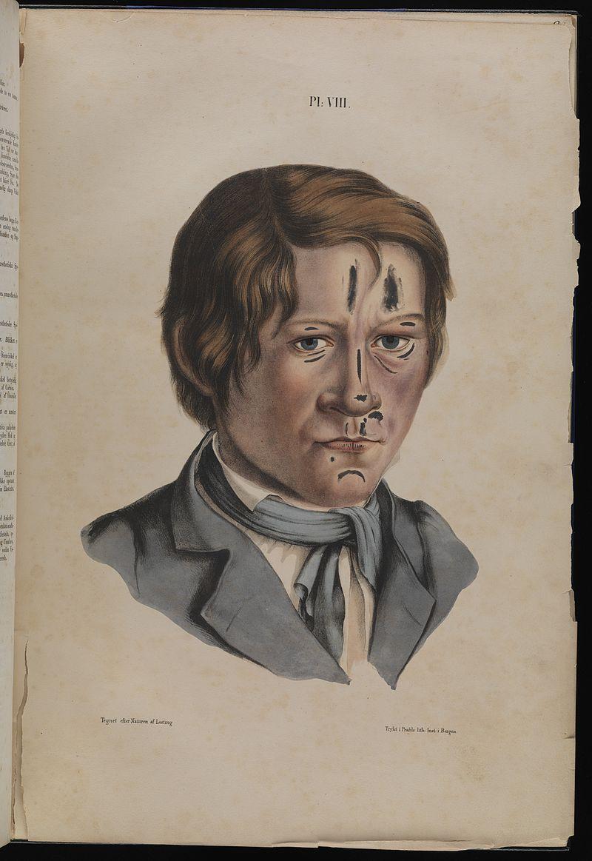 Leprosy in art - 12 year old boy 1800s