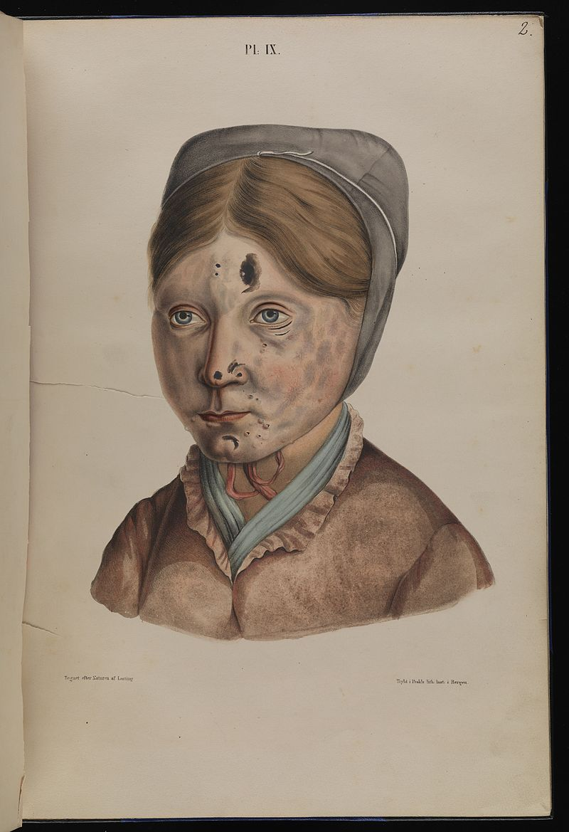 Leprosy in art - 13 year old girl 1800s