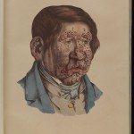 Leprosy In Art: An Uncomfortable Display