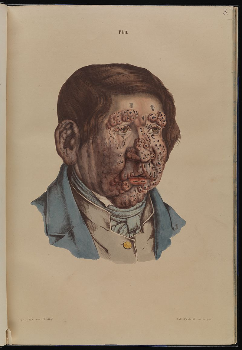 Leprosy in art - 1800s