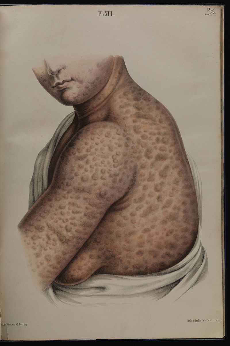 Leprosy in art - 20 year old woman with severe leprosy 1800s