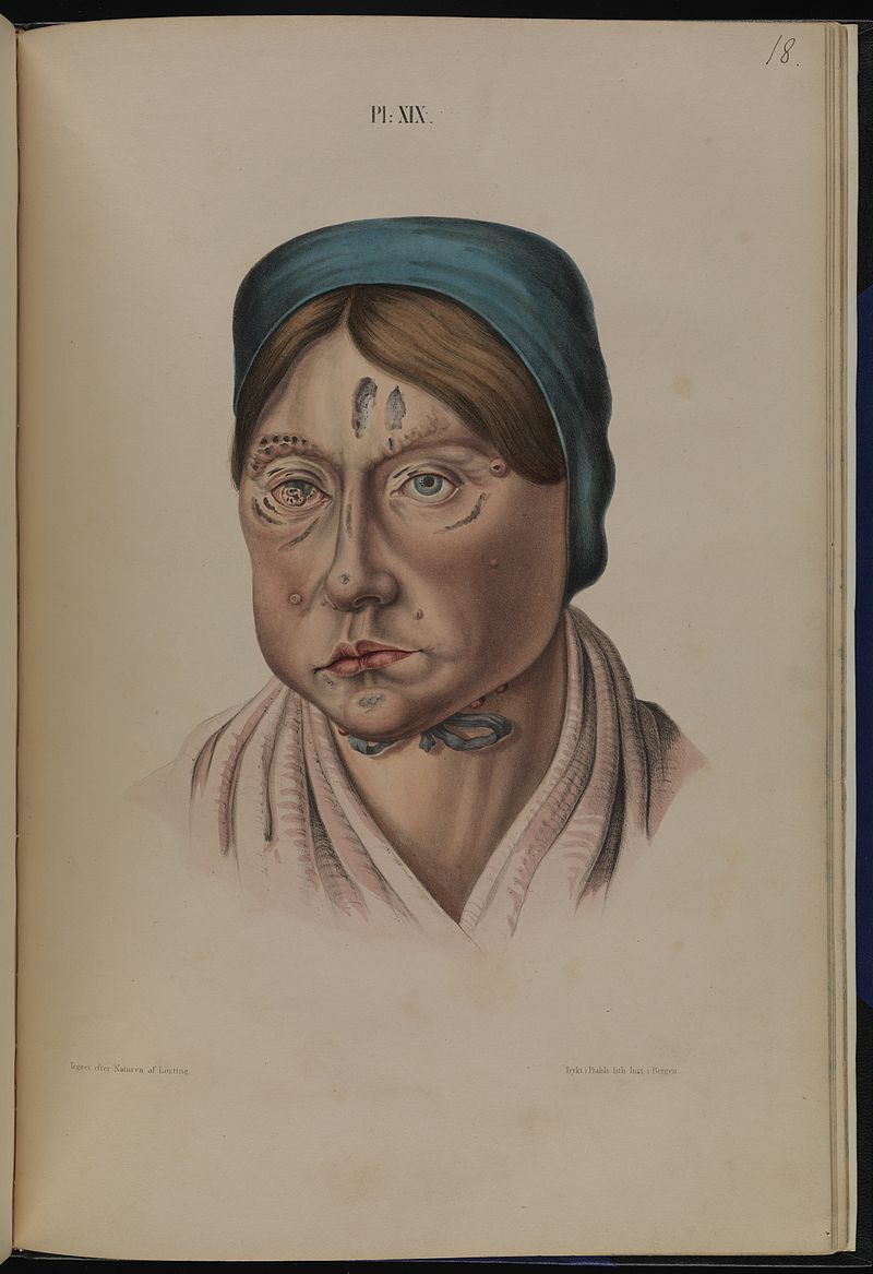 Leprosy in art - 26 year old woman with leprous lesions affecting her eye, face and jaw