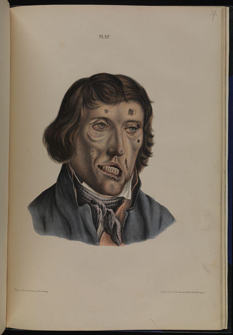 Leprosy in art - man aged 38