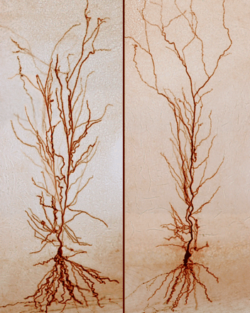 Things That Look Like Trees - Rat Neuron