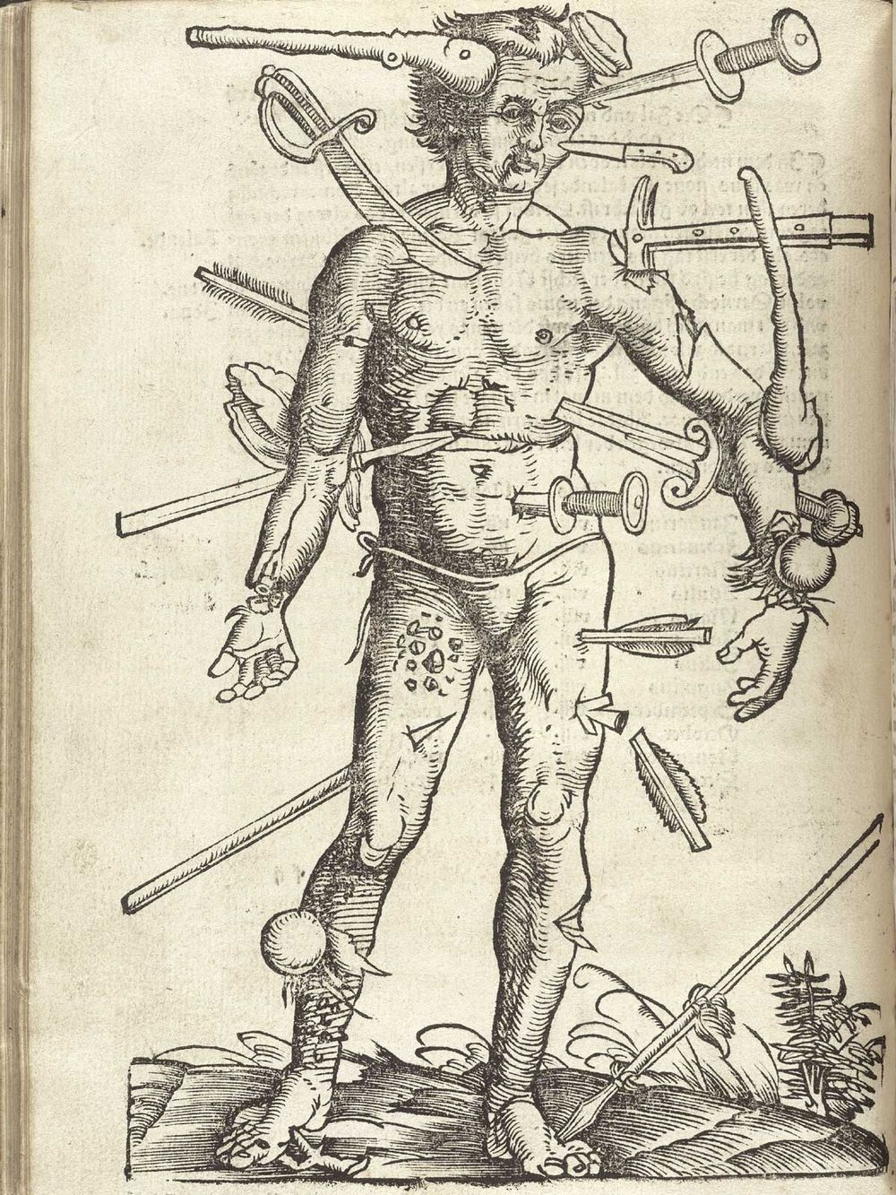 old-anatomy-drawings-battle-wounds