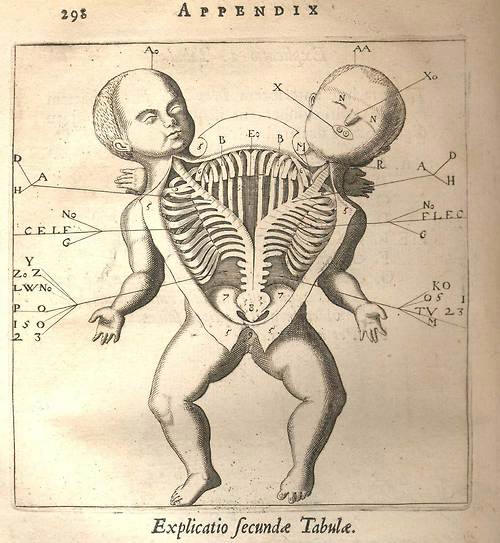 old-anatomy-drawings-conjoined-twins