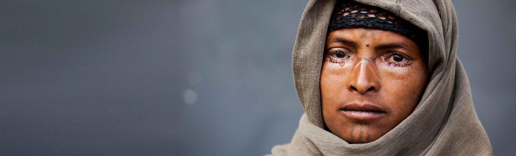 trachoma-face