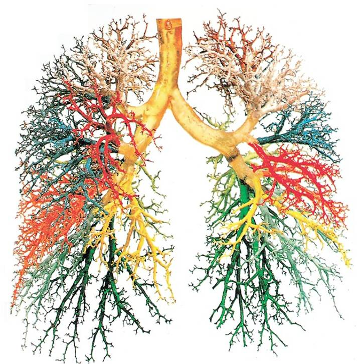Things That Look Like Trees - Bronchial Tree Lungs Colour - Lazer Horse
